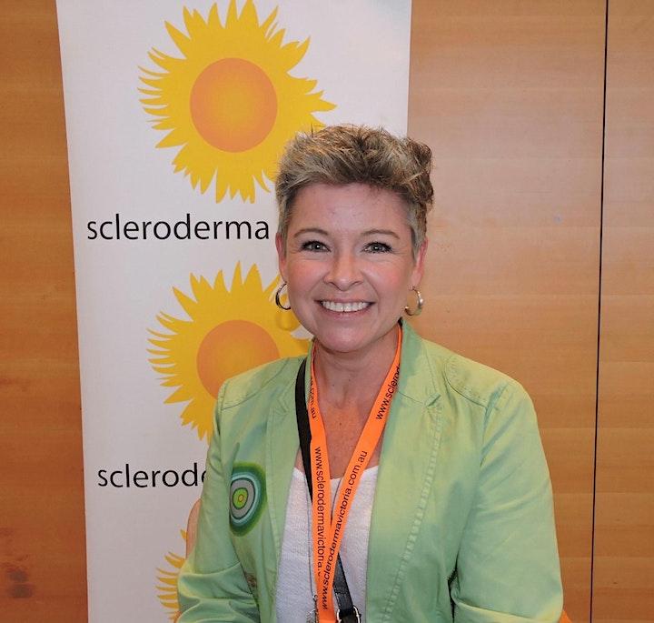 Meet our Committee - Scleroderma Australia Website Launch (VIC TAS SA WA) image