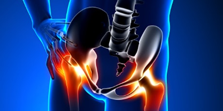 Free Community Seminar - Lateral Hip Pain tickets