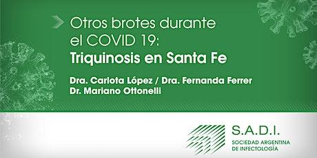 Otros brotes durante el Covid-19 - Triquinosis en Santa Fe. entradas