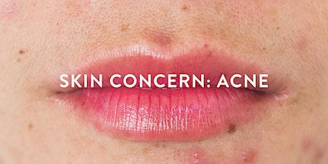 Skin Concern: Acne tickets