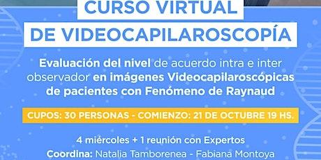 Curso Virtual de Videocapilaroscopía - 1ra Ed. ONL entradas