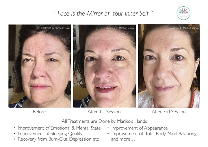 Natural Face Lifting Method - Full-Sequence Workshop image