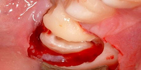 Hands on Minor Oral Surgery PM Session (FD, FD+1, PLVE) tickets