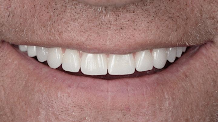 All on 4 Perth Dental Implant Seminar image