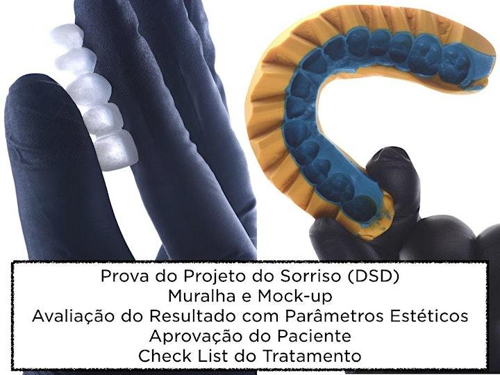 Imagem do evento Laminados Cerâmicos - Direto ao Ponto - Dica Clínica com Hands-on Completo