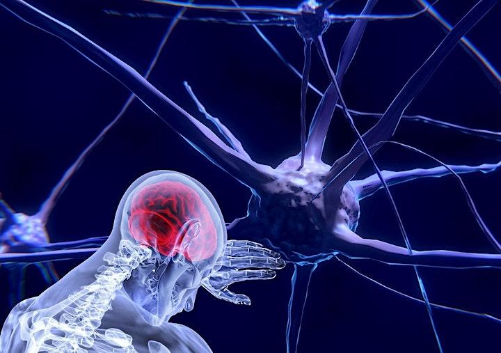 Image de Conférence Qu'est-ce qui tue les neurones?