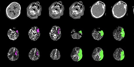 Virtual Neuroimaging: Part 1 - CT Angiography of the Head & Neck tickets
