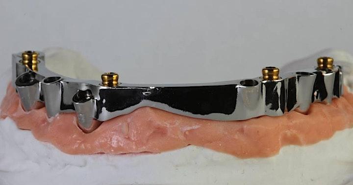 Immagine Protocolli semplici e innovativi in protesi fissa e rimovibile full-arch