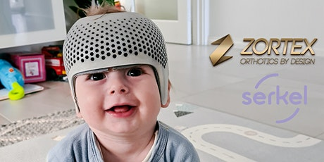 Zortex Orthotics - Rounding heads - Flat head syndrome in Babies: The fix tickets