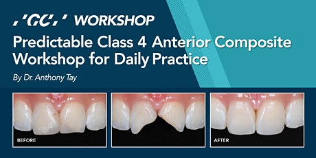 Predictable Class 4 Anterior Composite Workshop for Daily Practice