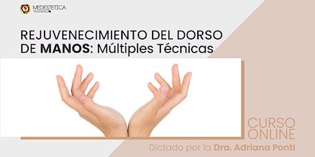 Rejuvenecimiento del dorso de Manos: Múltiples Técnicas entradas