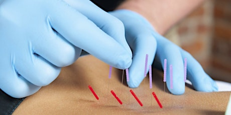 Chiropractic Dry Needling-Course 1-Cleveland, OH tickets