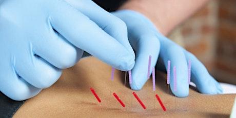 Chiropractic Dry Needling-Course 1-Phoenix, AZ tickets