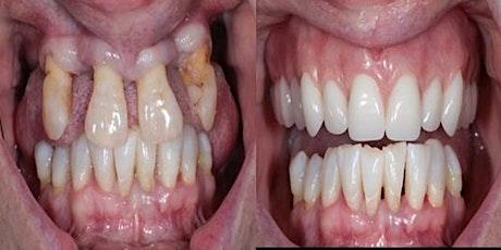 Struggling to make dentures Help is at Hand