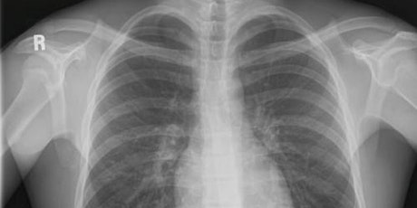 IR(ME)R and Radiation Safety for X-ray Referrers  - EKHUFT - ONLINE tickets