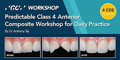 Predictable Class 4 Anterior Composite Workshop for Daily Practice tickets