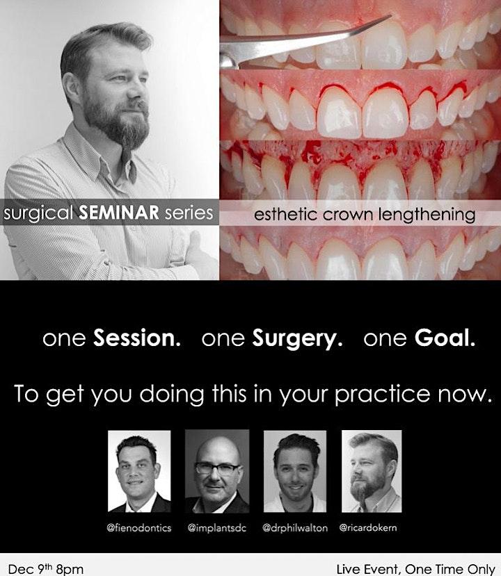 Surgical Seminar Series: Esthetic Crown Lengthening image