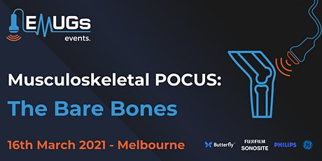Basic MSK: The Bare Bones tickets