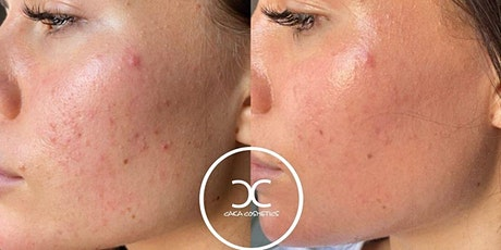 Microneedling Schulung Tickets