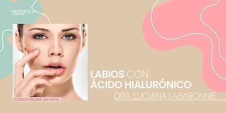 Labios con Ácido Hialurónico entradas
