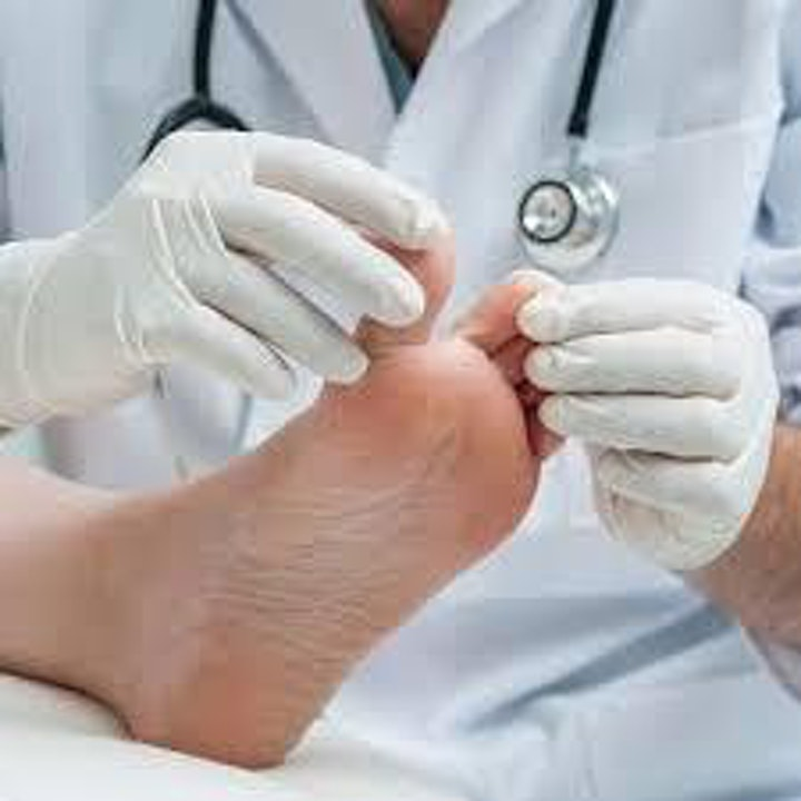 Common Skin Disorders of the Lower Limb and Foot image
