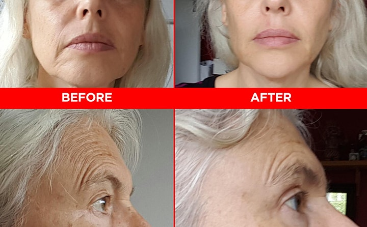 HOW TO LIFT YEARS OFF YOUR FACE NATURALLY image