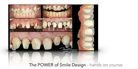 The Power Of Smile Design - Hands On Course tickets