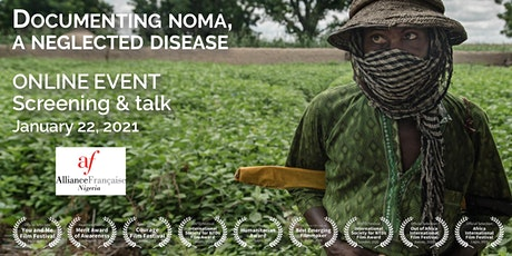 Documenting noma, a neglected disease (Screening + Talk) tickets