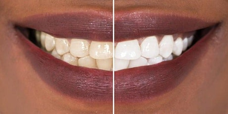 Are You A Candidate For Teeth Whitening? tickets
