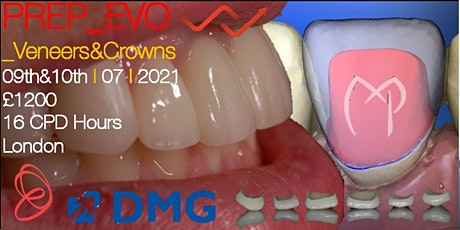 Veneer &  Crown Anterior Ceramic Restorations 9 and 10 July 2021 tickets