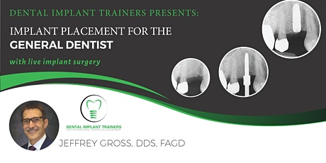 Implant Placement for the General Dentist tickets