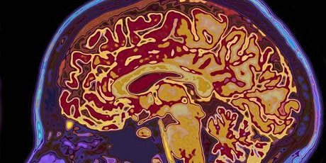 Managing the 5 Cognitive Domains of Brain Health tickets
