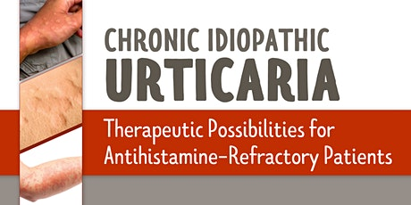 CIU: Therapeutic Possibilities for Antihistamine-Refractory Patients tickets