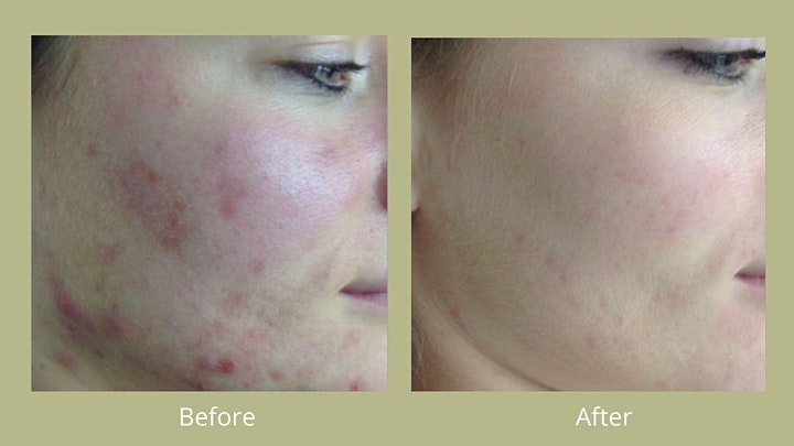 Skin Health and IPL Hair Removal Virtual Event image