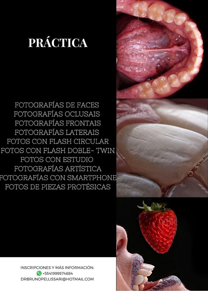 Imagen de FOTOGRAFÍA EN ODONTOLOGÍA