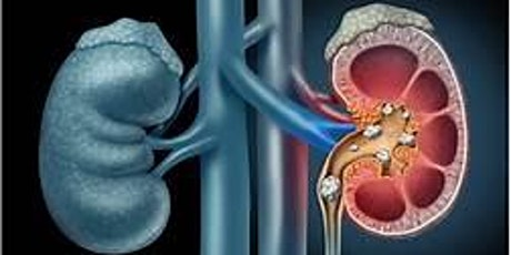 Understanding Renal Disease and hypertension tickets