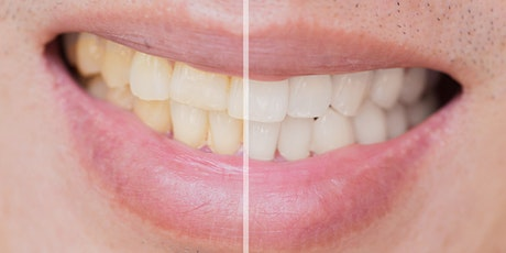 Tooth Whitening by Dental Hygienists and Therapists FREE ONLINE WEBINAR tickets