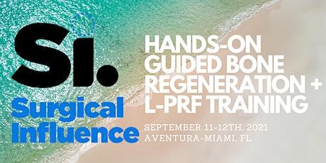 Si: Fienodontics + ImplantsDC present Hands-On GBR + L-PRF tickets