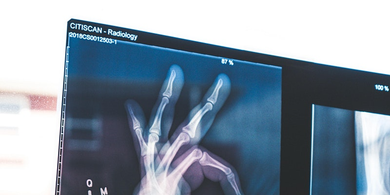 Webinar: Research at the Interface between Comp Sci and Medical Image Understanding