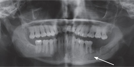 Bisphosphonates and Dental treatment  FREE ONLINE WEBINAR tickets