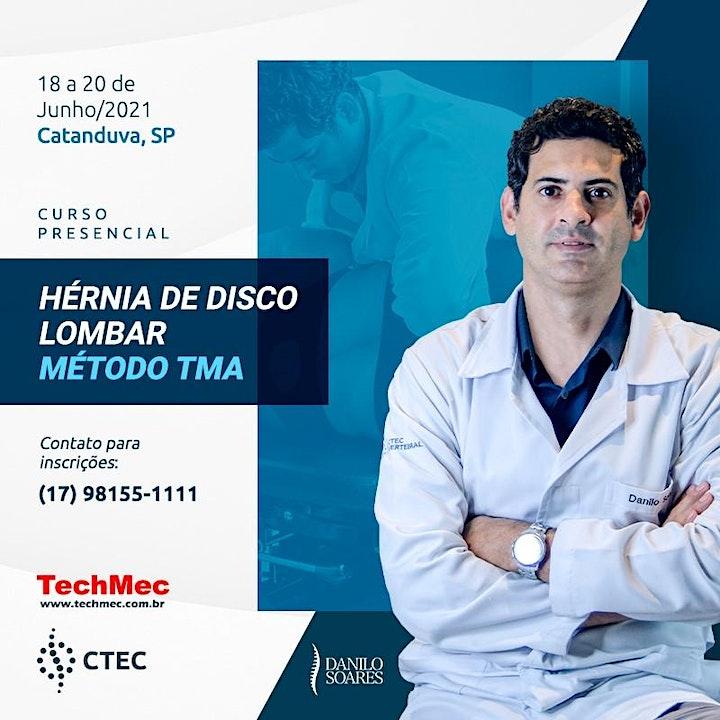 Imagem do evento HÉRNIA DE DISCO LOMBAR MÉTODO TMA