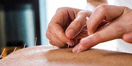 NUIG Confucius Institute Acupuncture in Ireland Webinar tickets