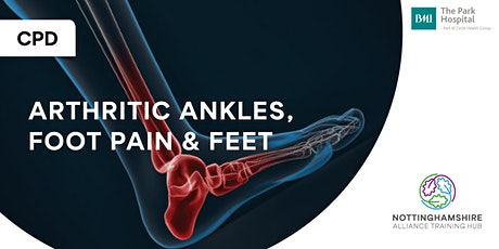 CPD - Arthritic Ankles, Footpain and Feet tickets