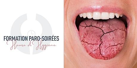 Heure d'Hygiène | Le syndrome de Sjögren billets