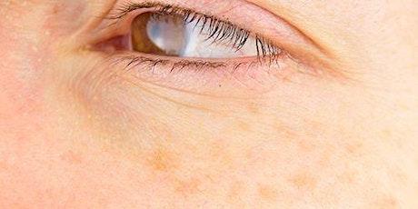24 Hour Skin Treatment To Get Rid of Dark Spots & Hyperpigmentation tickets