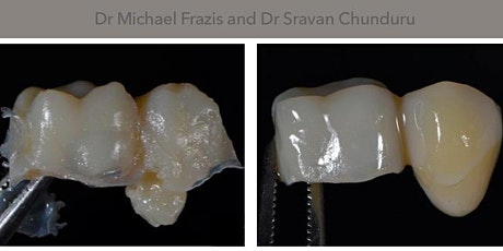 Non-Implant replacement options for single missing teeth 2021 tickets