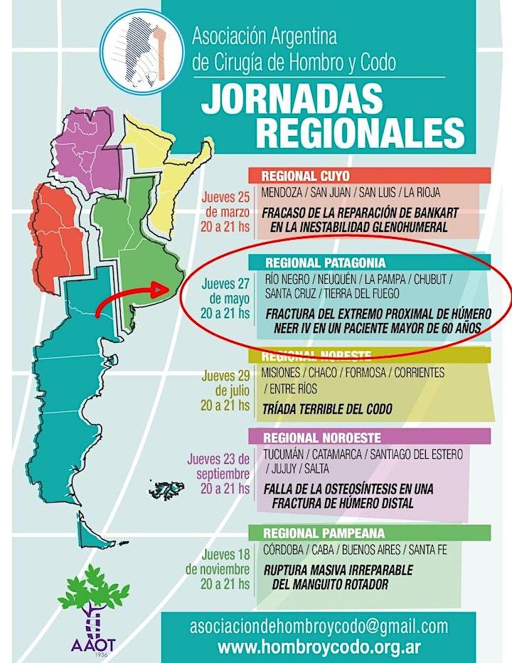 Imagen de ASOCIACIÓN ARGENTINA DE HOMBRO Y CODO - Jornada Regional PATAGONIA