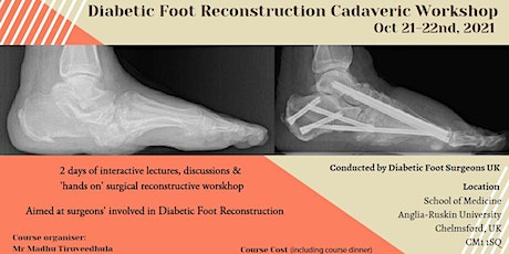 Diabetic Foot Reconstruction Cadaveric Workshop tickets