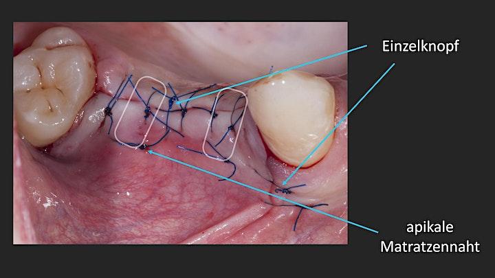 Fortbildung Zahnärztliche Chirurgie - Basics -: Bild