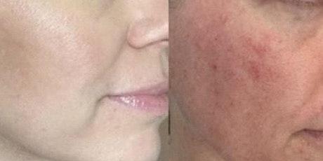 Goodbye ! Age spots, Acne scars, Fine lines, Hyperpigmentation tickets